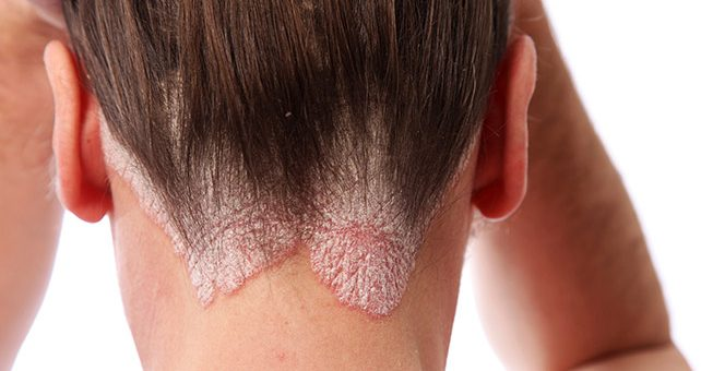 Scalp Psoriasis and How Shampoos Help