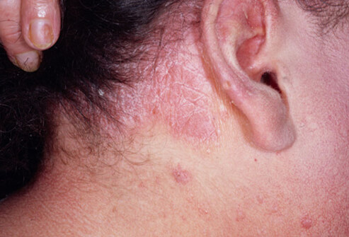 Scalp Psoriasis and Its Treatments