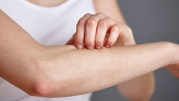 Find Timely and Effective Relief to Plaque Psoriasis